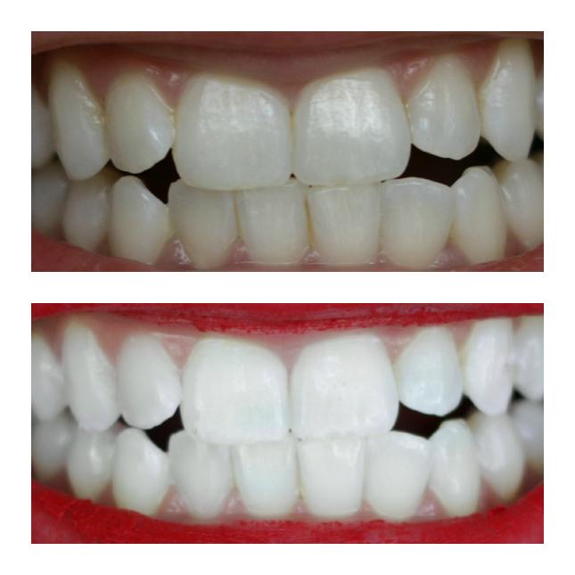smilebirlliant results