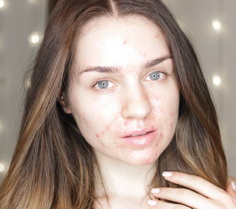 skin-before-going-on-accutane